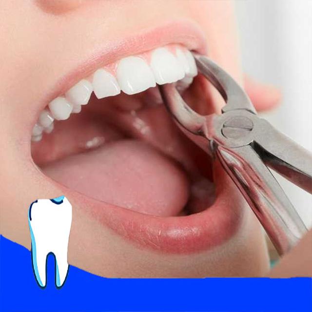 کشیدن دندان با انبر دست