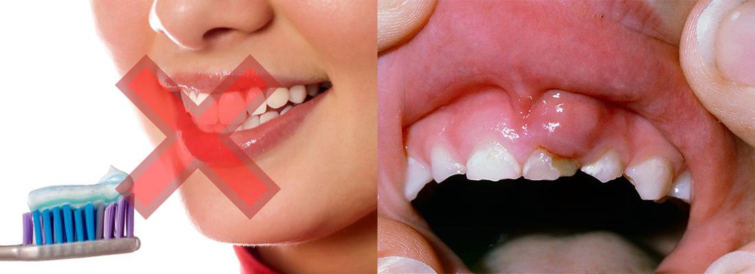 مسواک نزدن در التهاب لثه تاثیر دارد