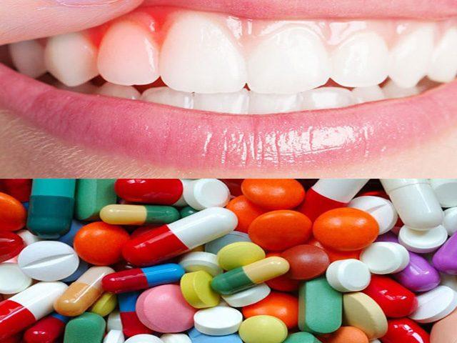 دارو های مختلف التهاب لثه