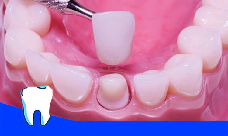کشیدن روکش دندان