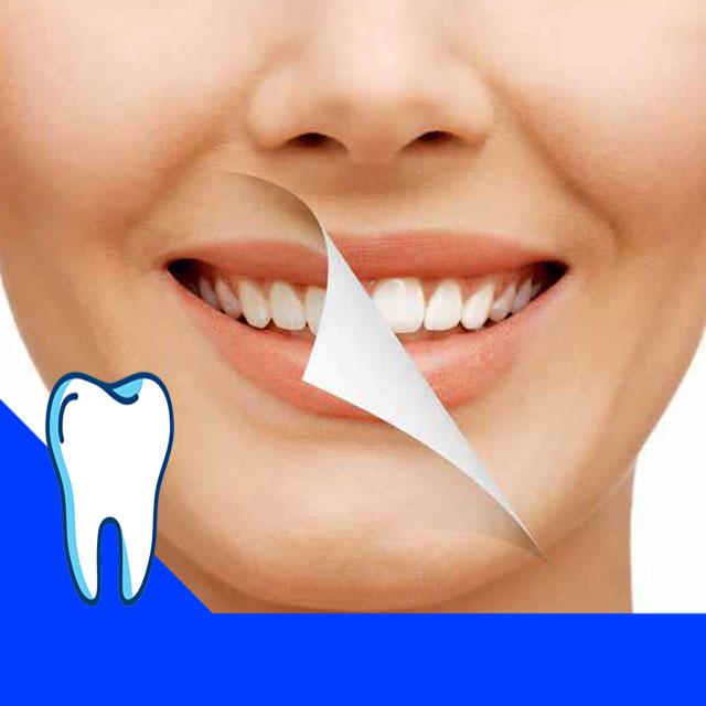 بلیچینگ دندان حدود 6 ماه تا یکسال دوام دارد