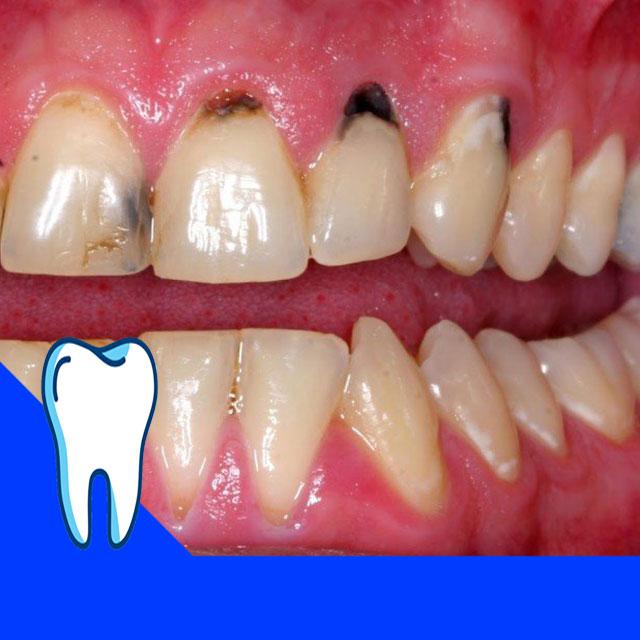 سیاهی در ریشه دندان ها