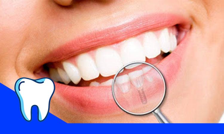سفیدی دندان های با سلول های بنیادی