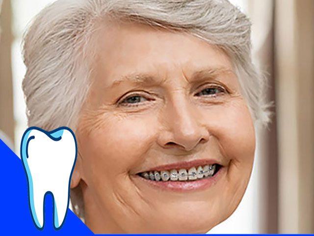 انجام ارتودنسی در سن بالا فواید اصلی ارتودنسی را دارد