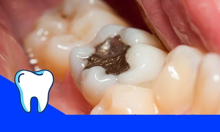 روش های درمان دندان پوسیده