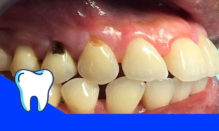 مواجه با پوسیدگی دندان