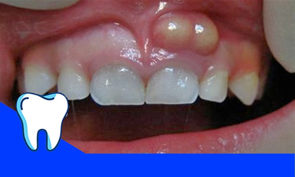 کیست دندان و لثه